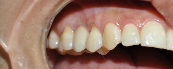 Corona de porcelana, implantes dentales, precios de implantes dentales, precios dentales implantes
