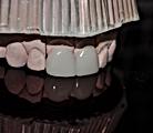 Urgencia dental, dentistas urgencia, dentistas en providencia, dentista en providencia, clinica odontologica en providencia