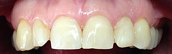 urgencias, dental, dentista, urgencia, providencia, santiago