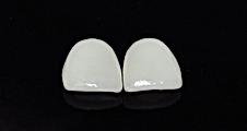 Urgencia dental, dentistas urgencia, dentistas en providencia, dentista en providencia, implantes dentales, implantes