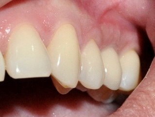 Precios y Valores de Implantes dentales