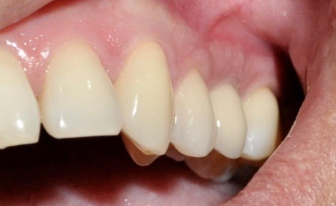 Precios de Implantes Dentales