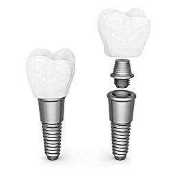 Urgencia dental, dentista en providencia, periodoncia, dentistas implantes