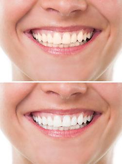 Dentista Urgencia Dental Providencia Implantes dentales