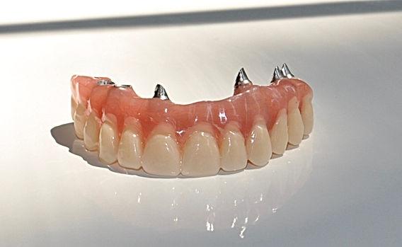 implantes dnetales en santiago- implante