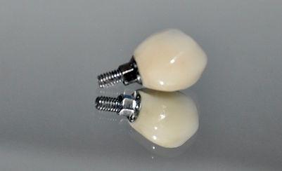 implantes dentales, precios implantes dentales, coronas porcelana, prótesis implantes dentales, prótesis dentales precios