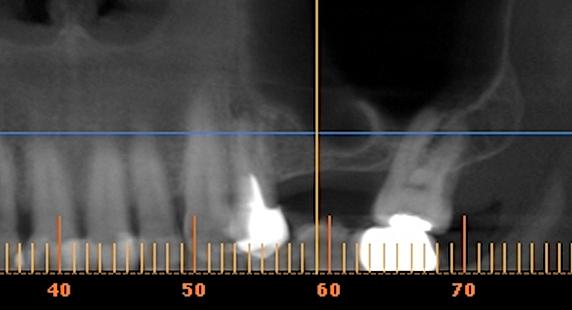 santiago clinica de implantes dentales, implnates dnetales, precios y fotos de implantes dentales