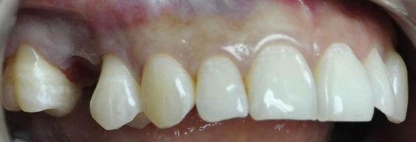 Implantes dentales, Preio de implnates dnetales , precios, implantes dentales, implantes dentales, precios