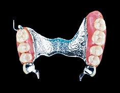 Implantes Dentales - Urgencias Dentales -  dentista en Providencia