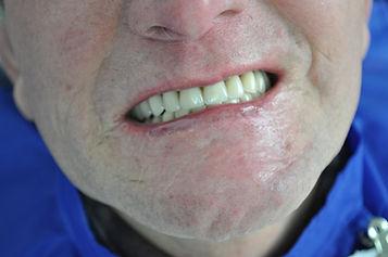 Urgencias Dentales - Dentistas en providencia - Providencia dentista