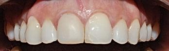 Urgencia dental, dentistas urgencia,clinica dental en providencia, dentistas providencia, clinica odontologica providencia santiago dental