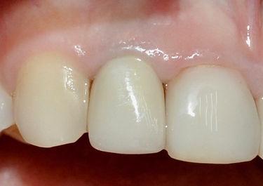 implantes-dental-corona-porcelana-esteti