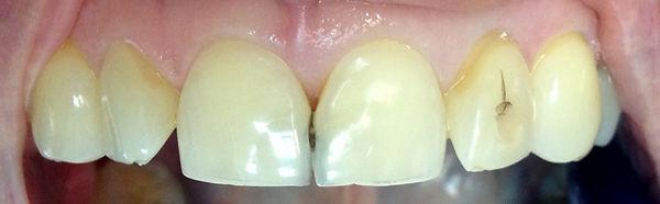 urgencia dental en providenica, clinica dental en providencia, dentistas en providencia,dental implnates dentales