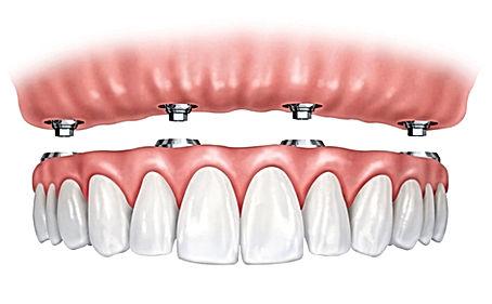 Precio de Implantes dentales, clinica dental, providencia, urgencia dental, dentista urgencia, dentista en providencia