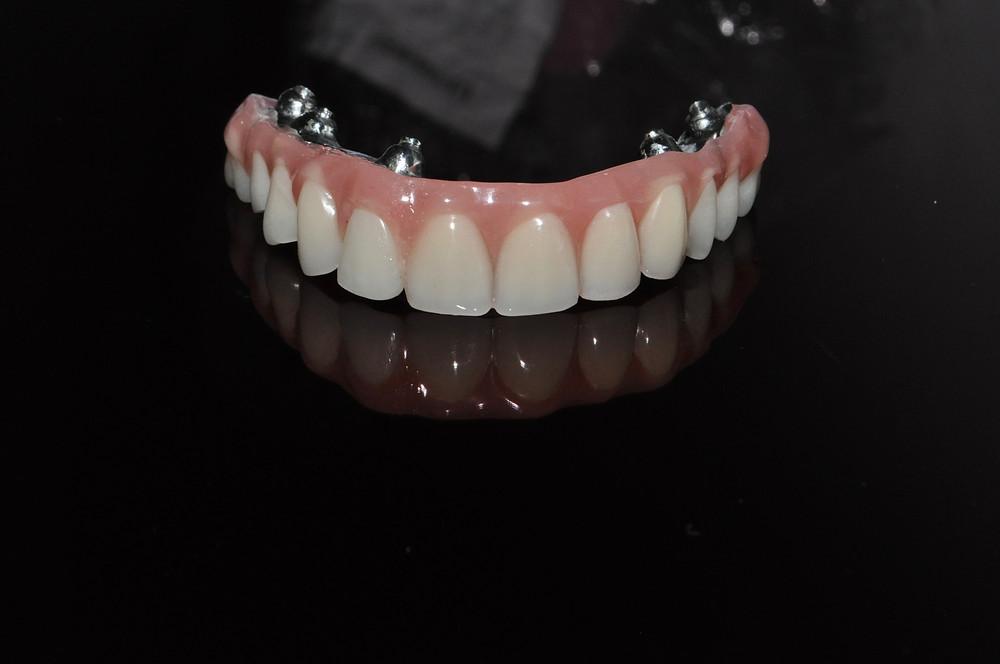 Implantes dentales, tratamiento de implantes dentales, prótesis sobre implantes dentales, solución fija para casos totales