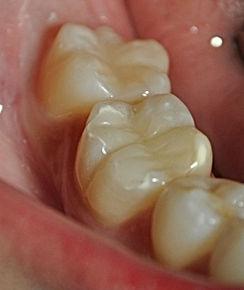 urgencia dental en clinica dental providencia, especilista en implanstes y urgencia dentales