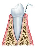 dentistas en providencia, urgencias dentales, urgencia dental, dentista urgencias
