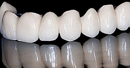 Precio de Implantes dentales, urgencia dental, dentistas en providencia, urgencia dental en providencia
