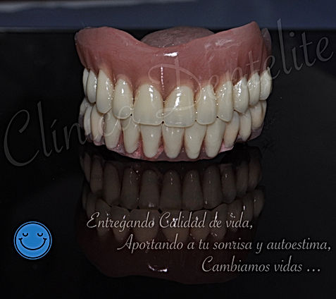 Protesis dental-implantes-dentales-denti
