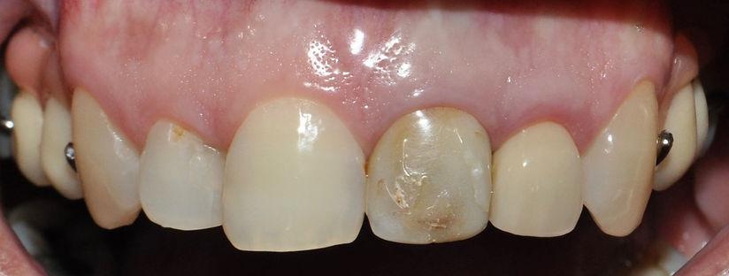 implantes dentales - precios implantes d