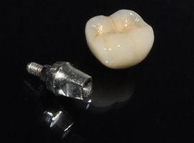 implantes dentales, clinica dental, dentistas en providencia, santiago dentista