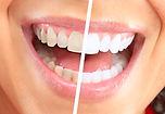 Implante dentales, clinica dental, urgencias dentales, dentistas en providencia