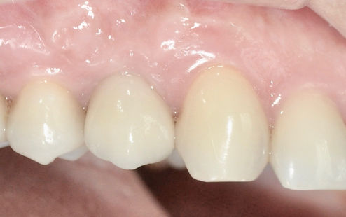 clinica dental, implantes dentales, urgencia dntal, dentista en providencia