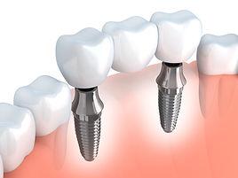 Dentistas en Providencia, especialistas urgencias dentales implantes dentales en clinica dental
