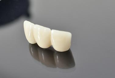 dentistas en Providencia - Urgencia Dentales
