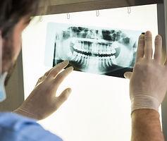 Urgencias Dentales, Implantes Dentales, Dentistas en Providencia, Dentelite