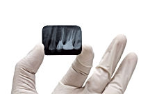 Urgencia Dental, Dentistas Urgencia, implantes dentales, dentistas en providencia