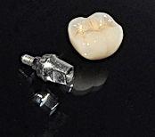 Implantes dentales, dentales implantes, precios de implantes dentales, clinica dental