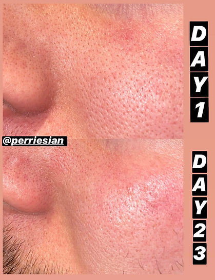 Pore size before after 2.jpg