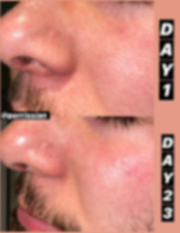 pore size before after 1.jpg