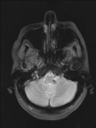 Cavernomas Cerebrais