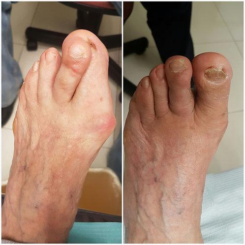 Dedos supraductos (empalmados)