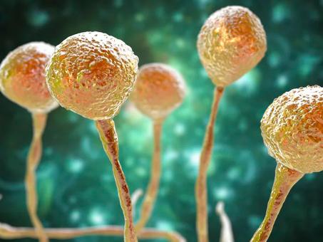 """""""Fungo preto"""" em paciente com coronavírus é investigado em SC"""
