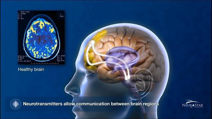 NS Brain.jpg