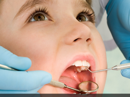 What are fissure sealants?