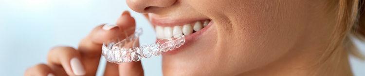Ortodoncia invisible en adultos