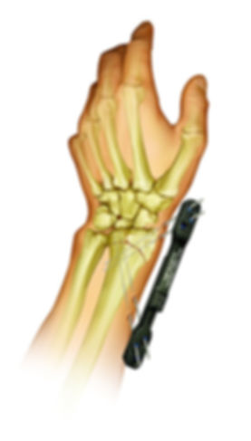 CPX_Carb_Hand_Illustration.jpg