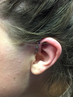 Forward Helix Project