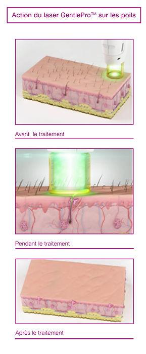 Epilation laser isle-sur-la-sorgue vaucluse