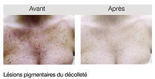 Dr Anne Cordel Médecine Esthétique & Epilation Laser Isle-sur-la-Sorgue Vaucluse