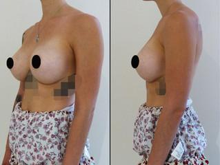 Prothèse mammaire, sein naturel : Les 2 !