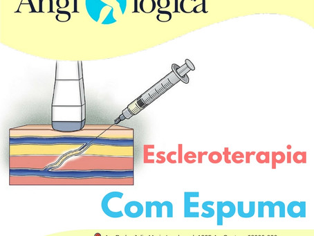 Escleroterapia com Espuma