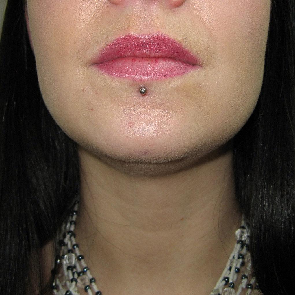 Lip/Labret