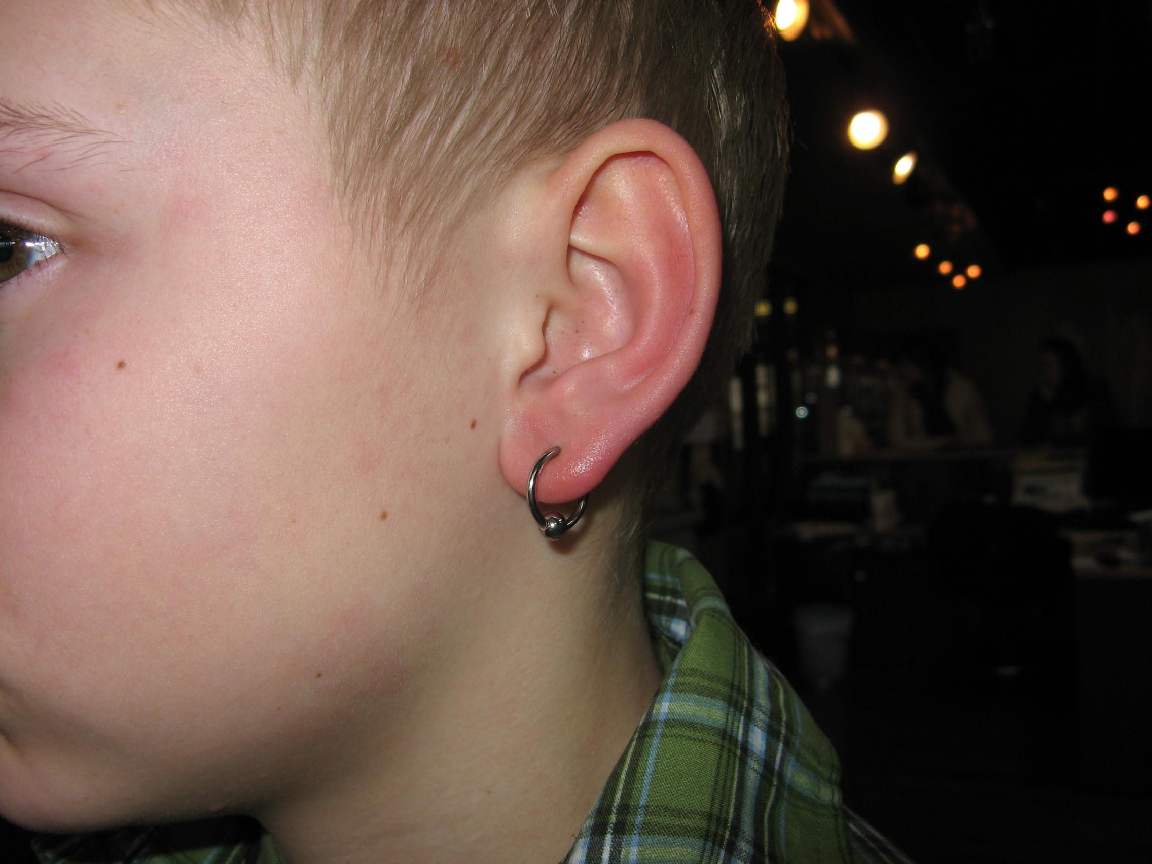 Ear Lobe(s)