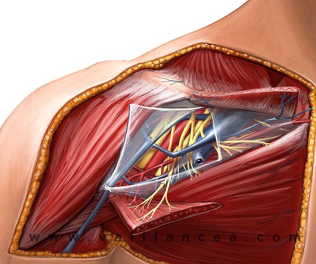 Anatomy sample Vali lancea s27.jpg