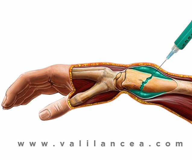 Anatomy sample Vali lancea s30.jpg